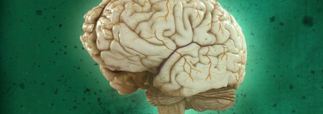 Prověřte svůj mozek (Test Your Brain) — 1. série